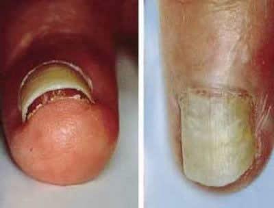 Se puede curar el hongo de las uñas embarazado